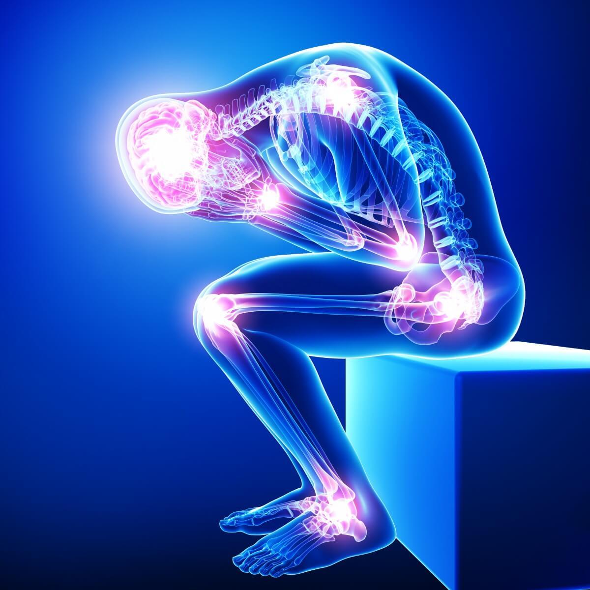 Fibromyalgia: Neurological Pain Disease
