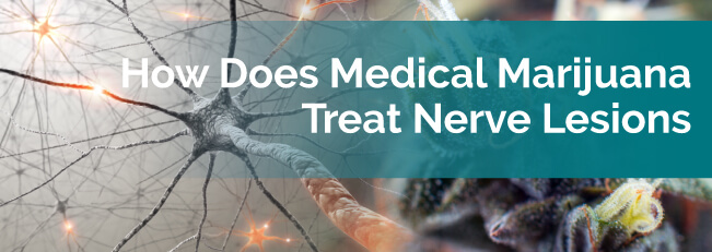 How Does Medical Marijuana Treat Nerve Lesions