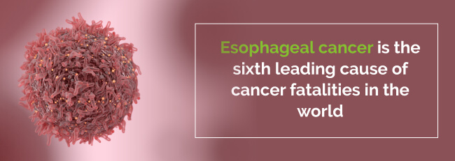Medical Marijuana for Esophageal Cancer - Marijuana Doctors