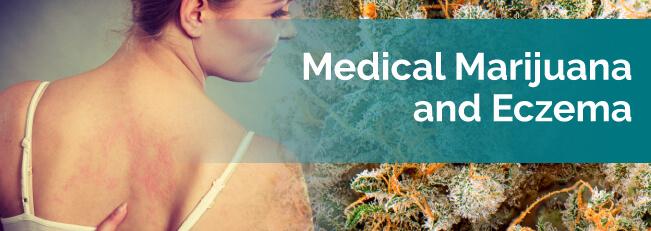 marijuana and eczema