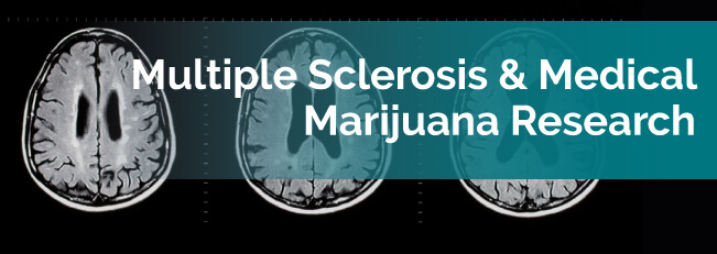 multiple sclerosis research