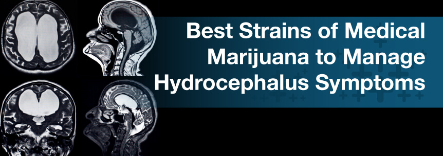 Best Strains of Medical Marijuana to Manage Hydrocephalus Symptoms