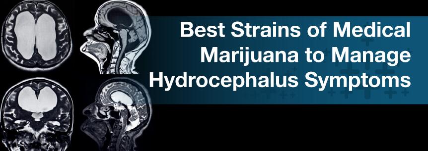 Best Strains of Medical Marijuana to Manage Hydrocephalus Symptoms