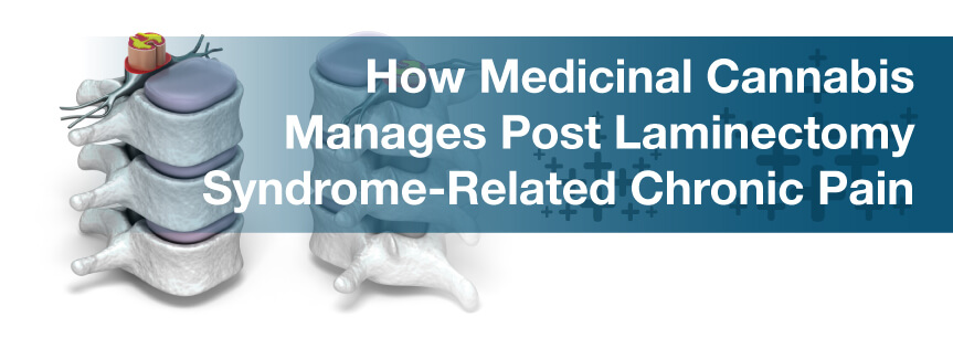 How Medicinal Cannabis Manages Post Laminectomy Syndrome-Related Chronic Pain