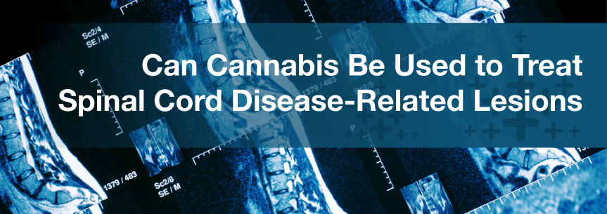 Can Cannabis Be Used to Treat Spinal Cord Disease-Related Lesions?
