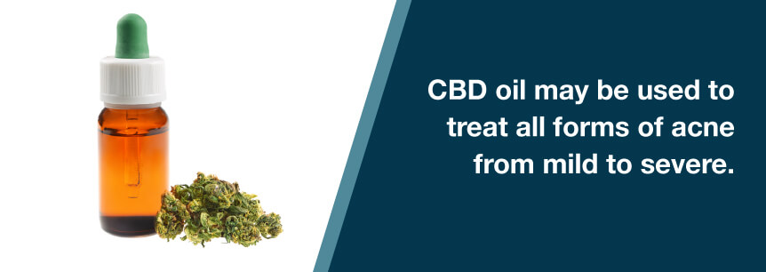acne cbd oil