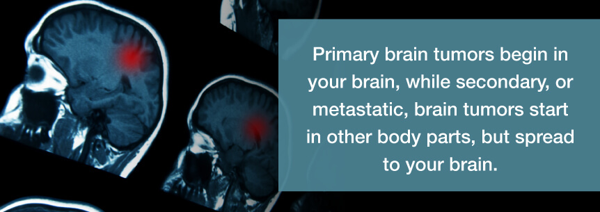 primary brain tumors