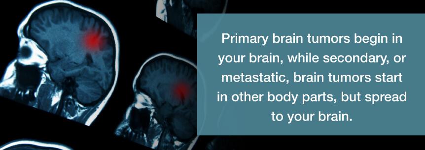 primary brain tumors