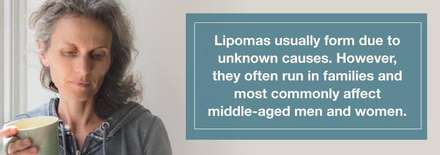 lipomas cause
