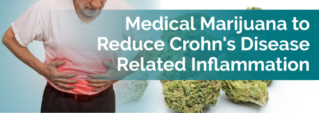 Medical Marijuana to Reduce Crohn's Disease Related Inflammation