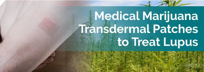 Medical Marijuana Transdermal Patches to Treat Lupus