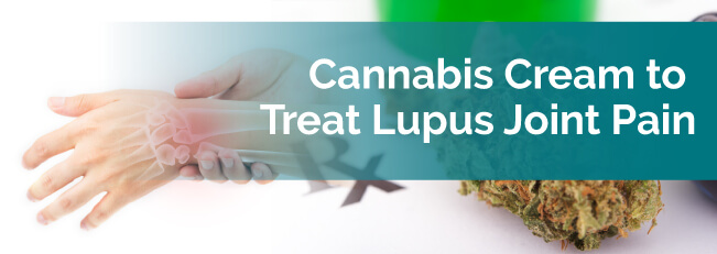 Cannabis Cream to Treat Lupus Joint Pain