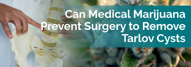 Can Medical Marijuana Prevent Surgery to Remove Tarlov Cysts?