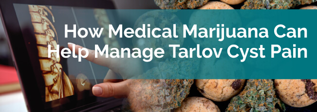 How Medical Marijuana Can Help Manage Tarlov Cyst Pain