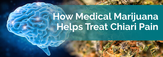 How Medical Marijuana Helps Treat Chiari Pain