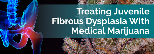 Treating Juvenile Fibrous Dysplasia With Medical Marijuana