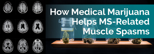 How Medical Marijuana Helps MS-Related Muscle Spasms