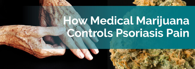 How Medical Marijuana Controls Psoriasis Pain