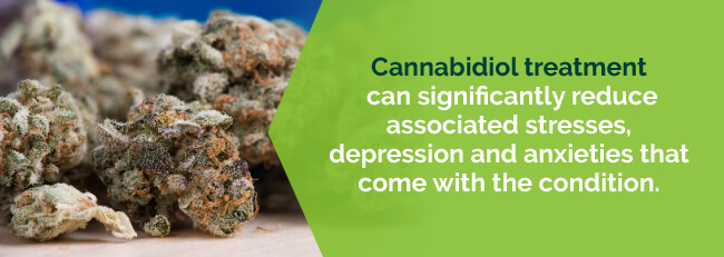 cannabidiol treatment