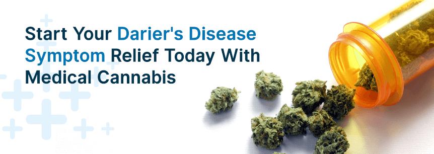 dariers disease relief