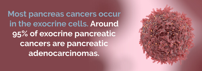 pancreas cancers occur in the exocrine cells