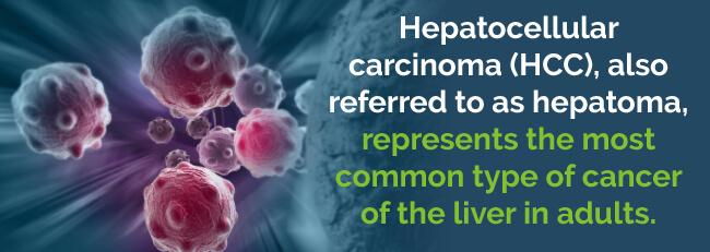 hcc liver cancer