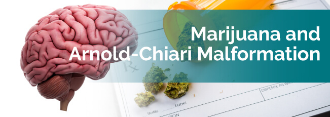marijuana and arnold-chiari malformation