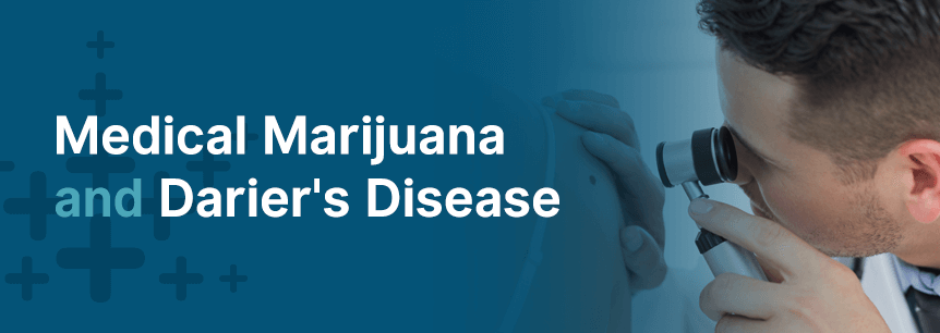 marijuana and darier disease