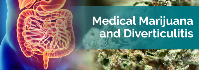 medical marijuana and diverticulitis