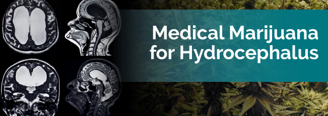Medical Marijuana for Hydrocephalus