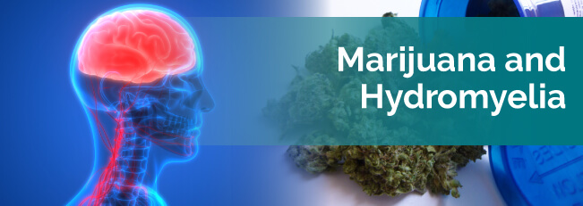 Marijuana and Hydromyelia