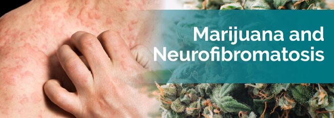 Marijuana and Neurofibromatosis