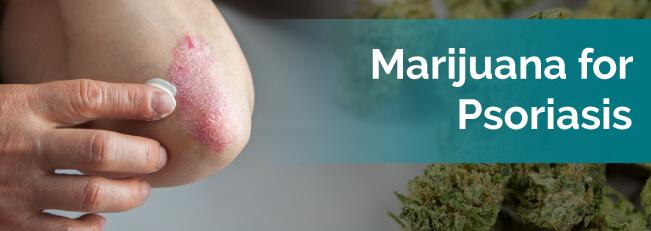 marijuana for psoriasis