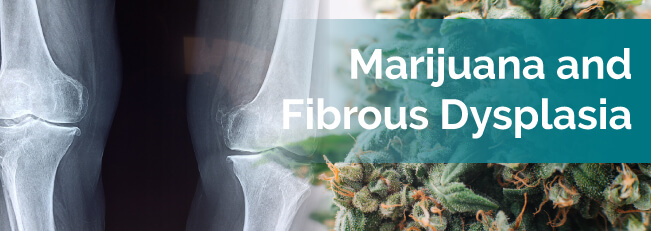 Marijuana and Fibrous Dysplasia
