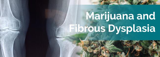 Marijuana and Fibrous Dysplasia