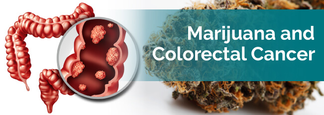 Marijuana and Colorectal Cancer