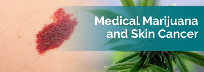 Medical Marijuana For Skin Cancer