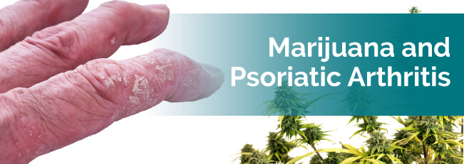 Marijuana and Psoriatic Arthritis