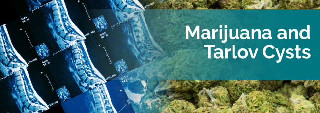 Marijuana and Tarlov Cysts