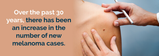 increase in melanoma cases