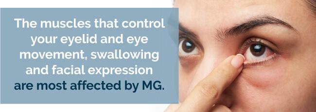 mg symptoms