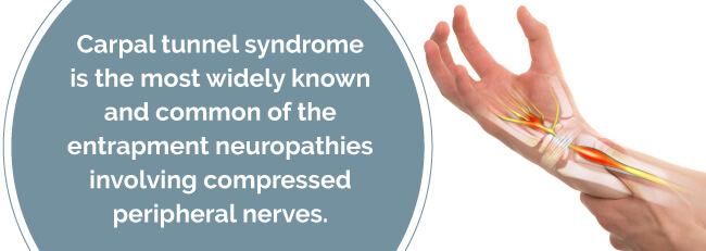 what is carpal tunnel syndrome
