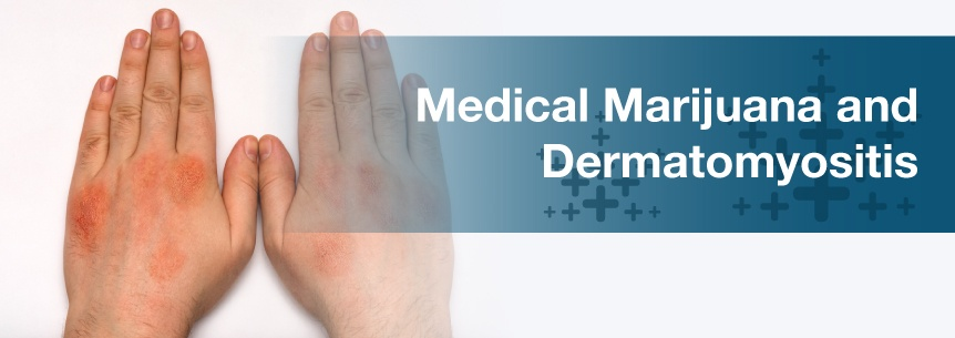 marijuana for dermatomyositis