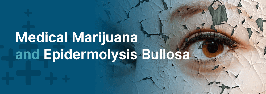 marijuana for epidermolysis bullosa