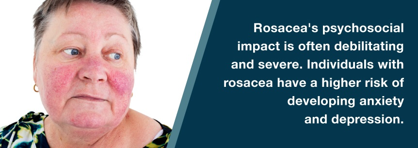 rosacea and depression