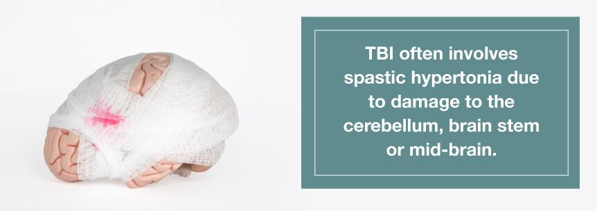 tbi causes