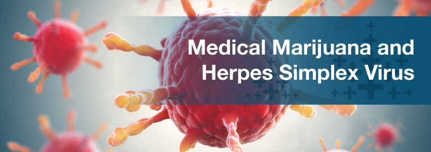 Medical Marijuana For Herpes Simplex Virus