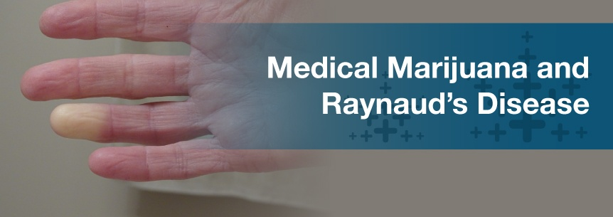 marijuana for raynauds