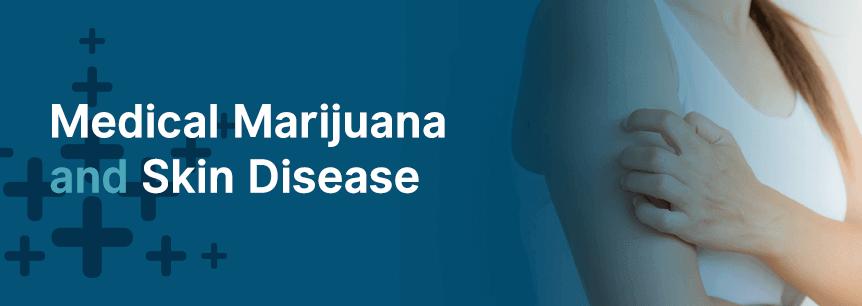 marijuana and skin disease