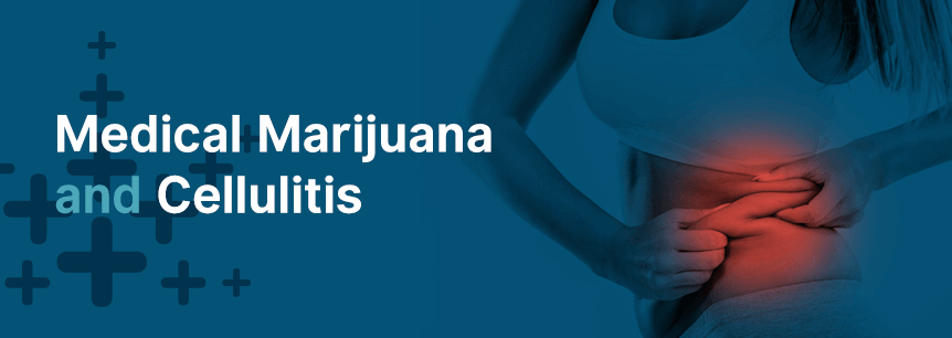 marijuana for cellulitis